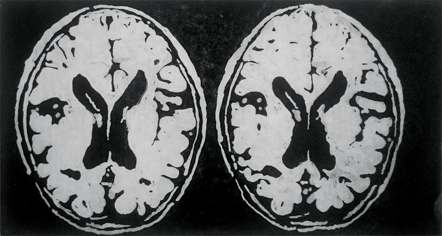 Brain View III