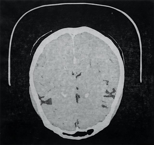 Brain View I